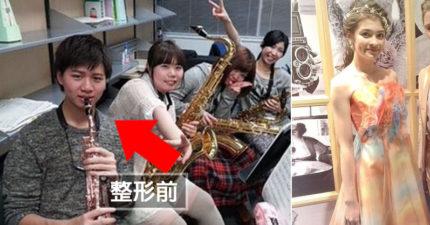 日本星二代「月花28萬零用錢」瘋狂美容!「近照100%狀態曝光」網驚:蛇精男是你?