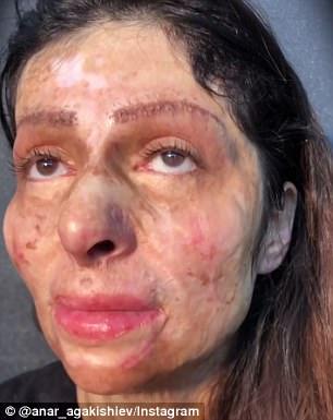 她11歲燒傷「滿臉疤痕」化妝品也沒用過,彩妝師打造完美妝容「最後超正臉蛋」逼哭400萬人