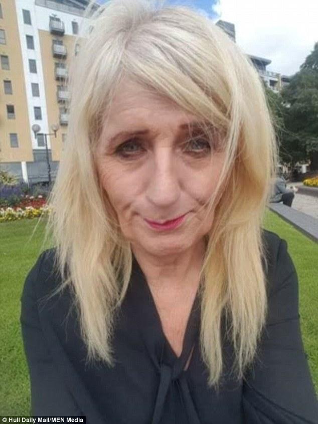 被未婚妻嘲笑「火雞垂臉」!變性人刮中1.6億怒整成「皮膚超白嫩」氣質超模,她:我要再賺一筆