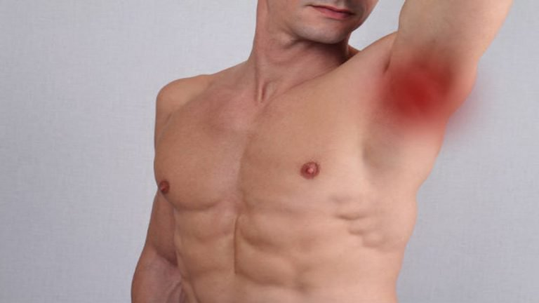 乳癌不是女森專利!8個男性罹患乳癌的明顯徵兆,去年統計死亡率達20%