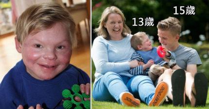 70億分之一機率!「長不大的男孩」13歲長得像3歲,不會走路說話「自創手語」和別人溝通!(影片)