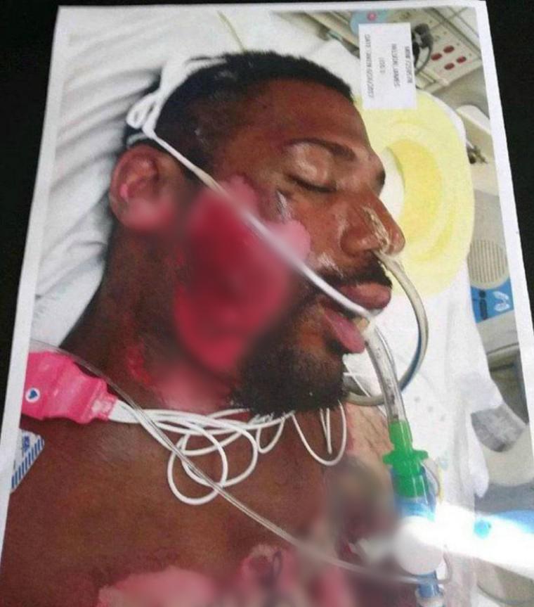 28歲男遭警察強壓「貼在77°C滾燙地面」,「右臉+胸前大片皮膚全被燙掉」畫面慘痛但他根本沒錯!