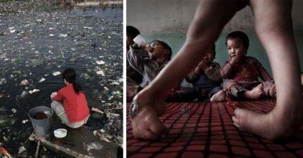 31張攝影師花5年時間冒死拍下「中國最嚴重環境污染」證據照,「孩子恐怖畸形」但中國不承認!