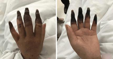婦人做完家事「8根手指慘變黑炭枯樹枝」,「焦黑一輩子救不了」醫生:她太粗心