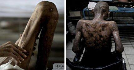 瘦到只剩骨頭「皮膚潰爛成瘡」,泰國愛滋病患療養院宛如「人間煉獄」只能虛弱等死…