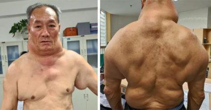 68歲老翁慘變「綠巨人浩克」全身畸形暴漲!醫生警告「造成他這樣的壞習慣」大部份人都有(影片)
