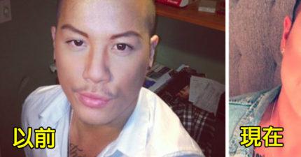 27歲港男追求變「真人肯尼」砸重金整形,「豐唇+瞳孔變藍模樣」他不滿意:接下來要隆鼻