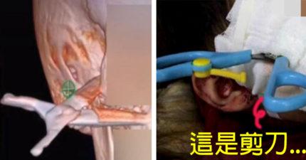 2歲屁孩「自以為剪刀俠」,拿剪刀亂竄「直接捅入太陽穴」一路哭進醫院...醫生:這是奇蹟!