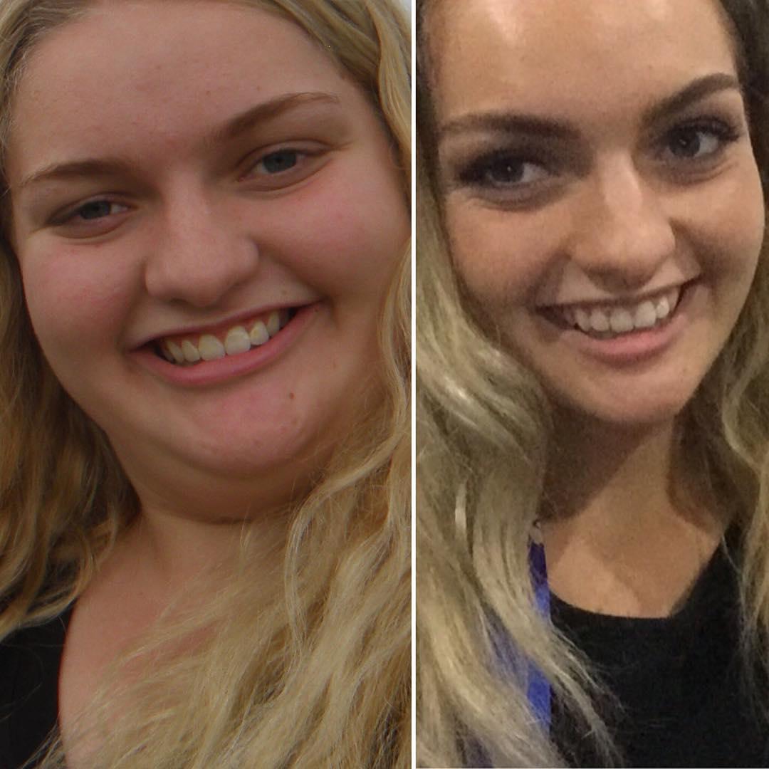 17歲女暴食不運動「胖到122公斤」只能穿XXL,花11個月「瘦掉半個自己」翻身模特兒等級正妹!