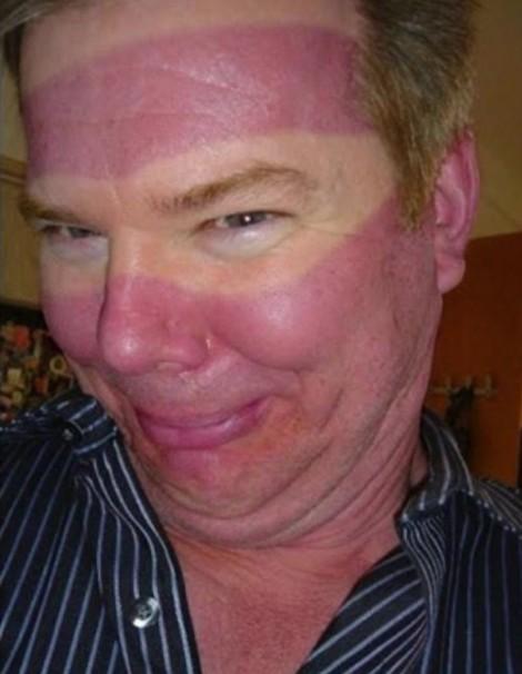 比刺青還要悲催!19個被太陽烈焰「熊熊燃燒的烙印」,就說大熱天不要穿吊嘎