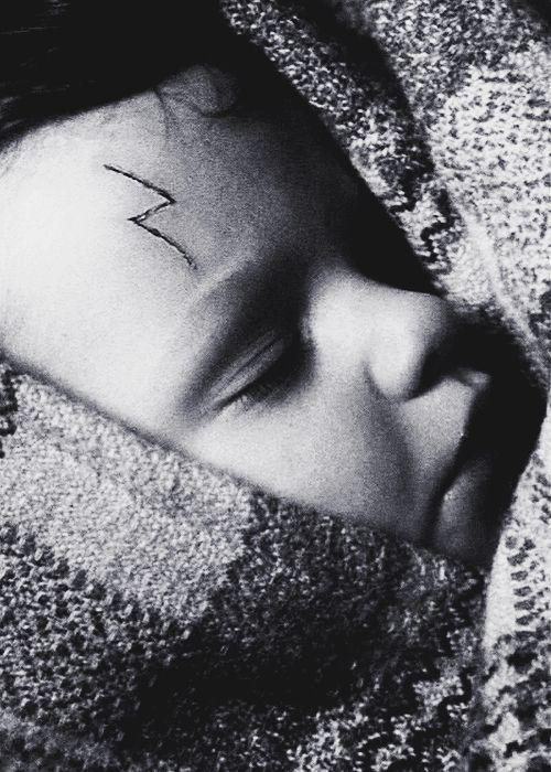 男嬰出生「眉心中間生出氣球腫瘤」,眼睛鼻子被壓扁埋沒...醫生細心切除後「原本的樣貌更讓爸媽驚喜」