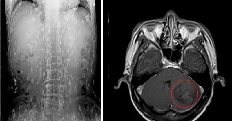 他平常狂吃「半熟豬肉」,醫生打開他的X光片差點嘔吐「肌肉組織裡的小白點會要你的命!」