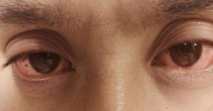 實驗者挑戰「1天只睡5小時」,持續1個禮拜「身體發生的變化」他崩潰中斷:我受不了了!(影片)