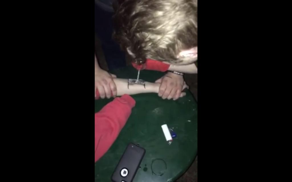 男子為耍帥「手上烙印箭頭」,2月後「疤痕災難級變化」讓他身上多個「超糗硬挺象徵」(影片)