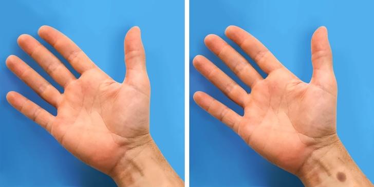 人類有救了!科學家發現「掰了絕症法」痊癒率高達98%