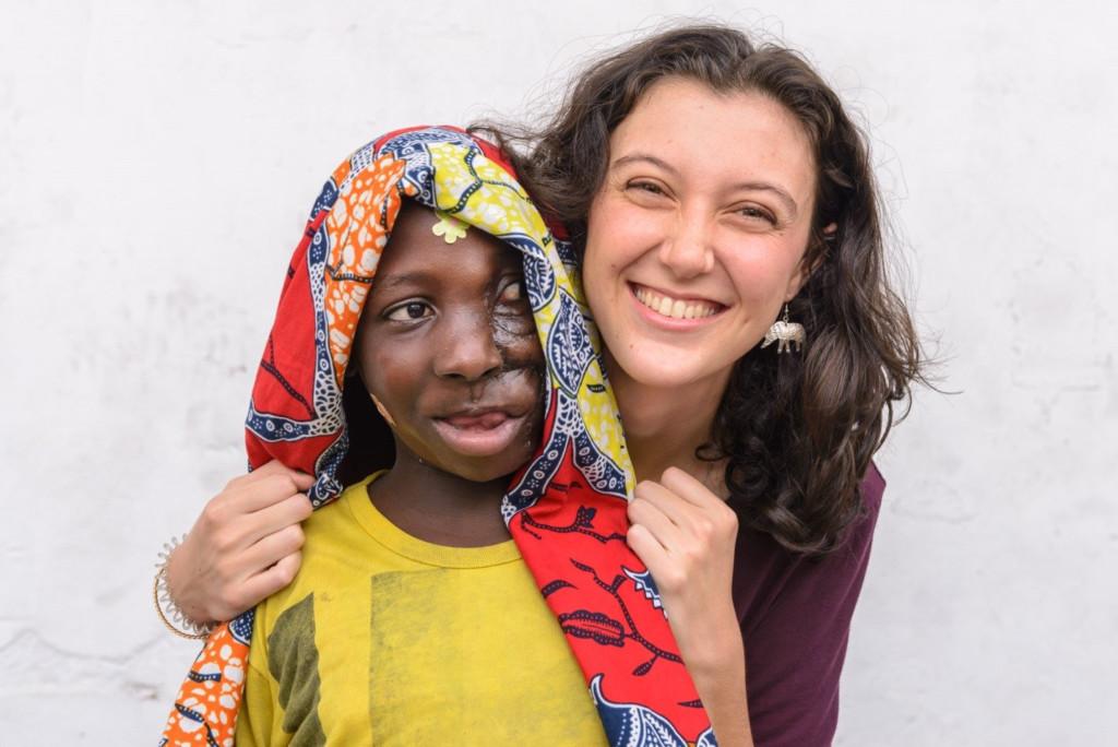 少女手術移除「無法正常呼吸進食」的臉部腫瘤後首度美美微笑,慈善醫生:她能改變世界
