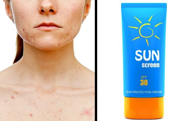 痘疤在臉上不斷繁殖?10個讓「痘疤臉→嬰兒白嫩臉」的輕鬆變美招數,用對方法「按摩」效果讓你意想不到!