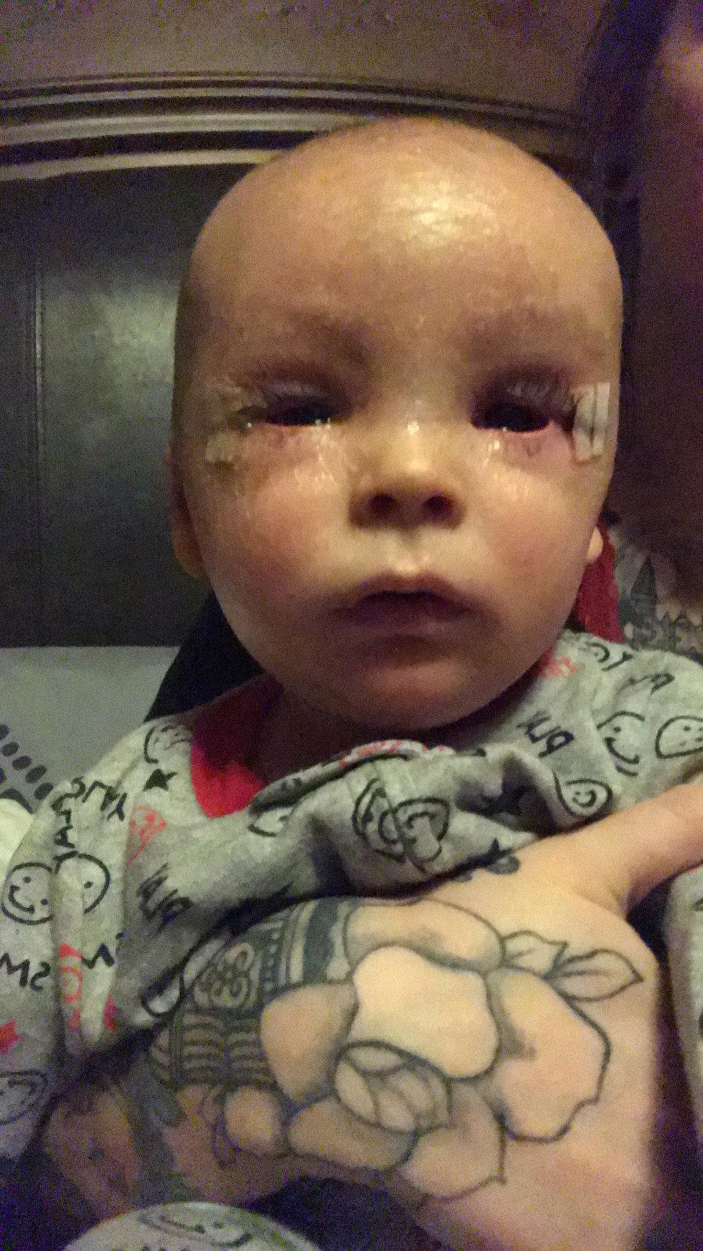 10萬分之一機率...罕病童皮膚如剝落魚鱗「雙眼閉不起來」醫生也沒轍,媽媽擅用「大麻」帶來奇蹟改變!