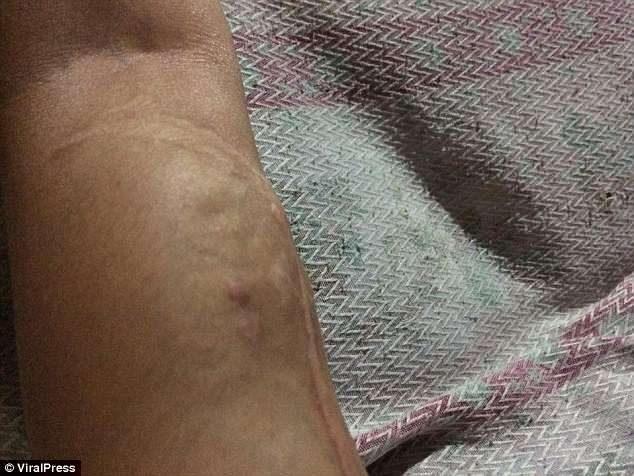 以為被蚊子叮!少女手臂腫成「大力水手卜派」 17次化療失敗忍痛截掉:暫時不用擔心了