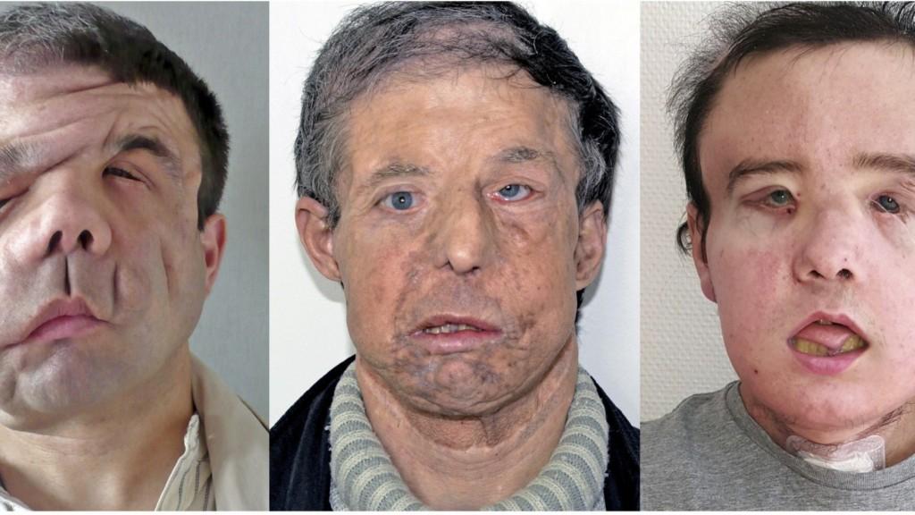 三臉男「兩度換臉」成全球首例,「像畫畫一樣的進化過程」證明醫學已經超出我們想像!