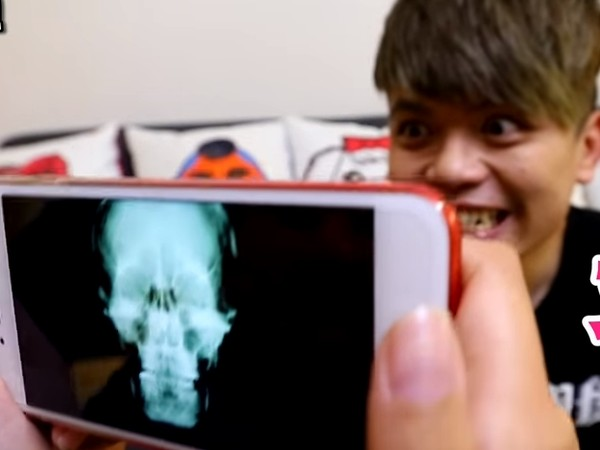 蔡阿嘎稱霸網紅地位「iPhone8隱藏功能全破解」,「拍出骨骼X光片」醫院放射室醫護人員全傻眼...