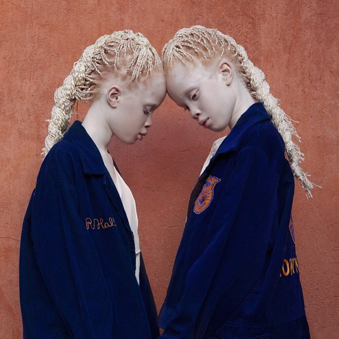 22張世界最罕見的17000分之1「白化症雙胞胎」,「長大後超正模樣」美到超越人類!