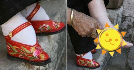 中國傳統「比整形還極端」的纏足文化照 「用X光看」驚悚到像是PS出來的!