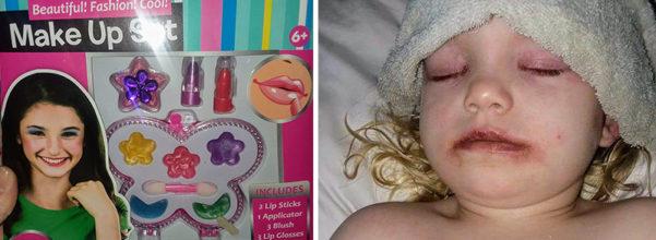 爸媽買廉價化妝品哄女兒 一抹臉上瞬間變成香腸嘴「直接躺進醫院」