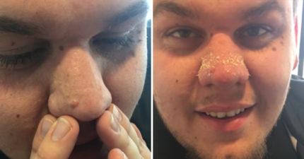 超簡易擠粉刺方法 男子10秒馬上擠出「超密集義大利麵」看了包準半年不敢吃!