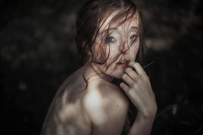 臉裂女從小被霸凌 現在變身超正模特兒「證明美不只有一種」