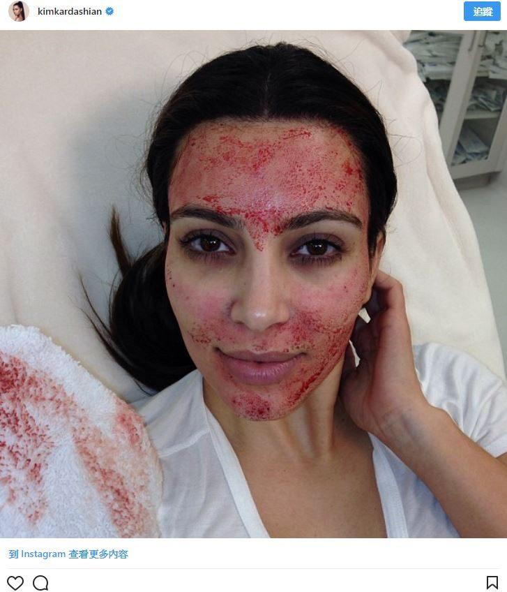 名人保養偏方一個比一個獵奇 她用「水蛭吸自己血」阻止皮膚老化