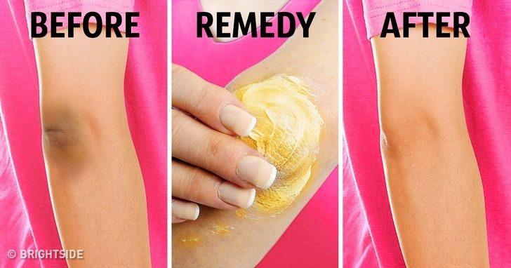 拒絕當黑美人!10項在家也能輕鬆做到「膝蓋手肘美白DIY秘方」