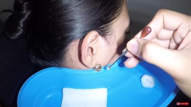 醫生挖出2塊超大耳屎嚇壞醫療人員 她:這是我25年的結晶!