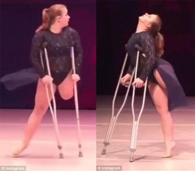 影/12歲小妹只剩一條腿 拄拐杖跳「超狂單腿舞」爸媽台下哭翻:很驕傲