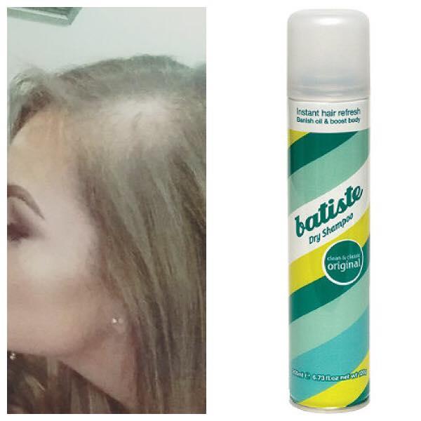 乾洗髮好方便?21歲女天天噴「禿了」 崩潰:長不回來