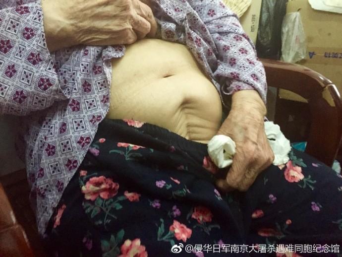 94歲嬤淚訴救50人「被日軍拖去房間」 掀衣驚見肚皮上「完事後大洞」
