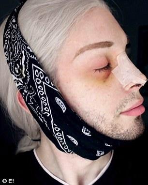 25歲男砸百萬變精靈 「改變瞳孔色+四肢拉長」:是我嚮往的空靈美