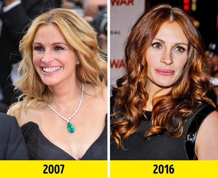 歲月是什麼可以吃嗎?17位「年過40歲看起來卻像25歲」凍齡女星