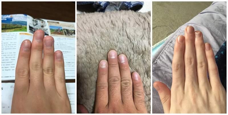 影/測量曖昧對象「大小」靠這2根手指 奈米蛇或巨蟒看光光