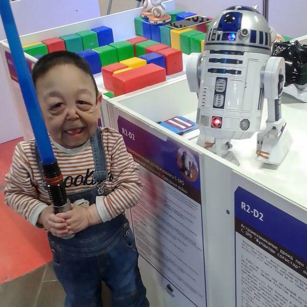 現實版「班傑明」80歲臉蛋身高卻超迷你 醫生:他實際年齡6歲