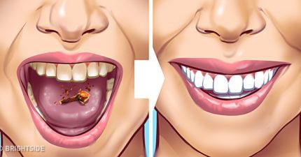牙齒總是黃黃的、不敢露齒笑?10種有效又天然的「去除牙垢方法」