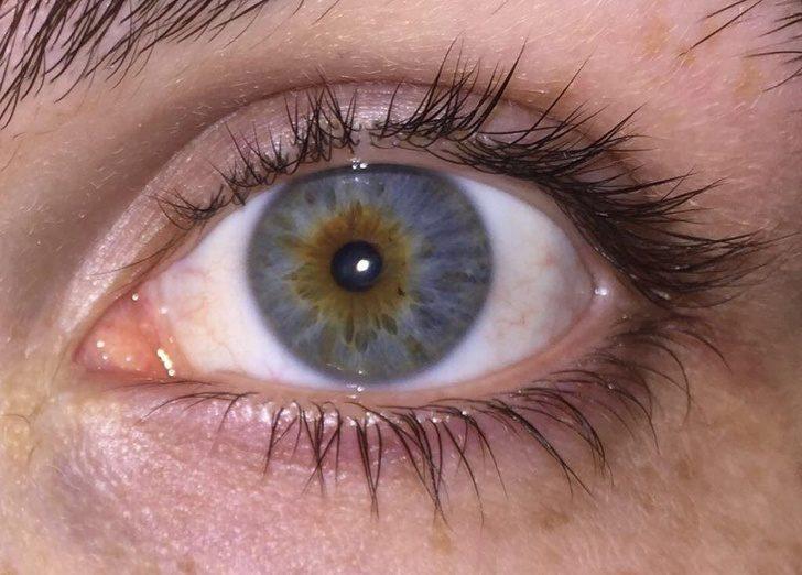 一個眼睛兩個瞳孔!20張證明「你根本就不了解人類」的罕見人類照