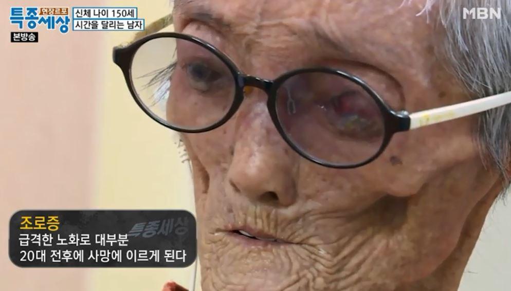 社群傳說「150歲的男人」 電視台深入驚覺才52歲...他:我得了一個奇怪的病