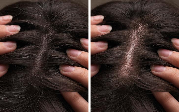 5個「不染髮就能讓白髮通通看不見」的方便招數 拔白頭髮後果超慘!