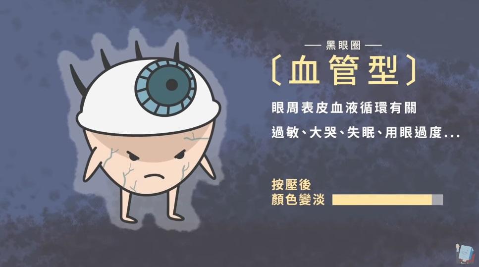 睡很飽起床還是像貓熊!「3大類型」一次搞懂黑眼圈 專業醫師:防曬hen重要