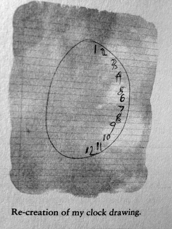惡魔佔據了身體!紐約女記者莫名崩潰哭叫 醫生要她畫「時鐘圖」得解:是大腦著火了
