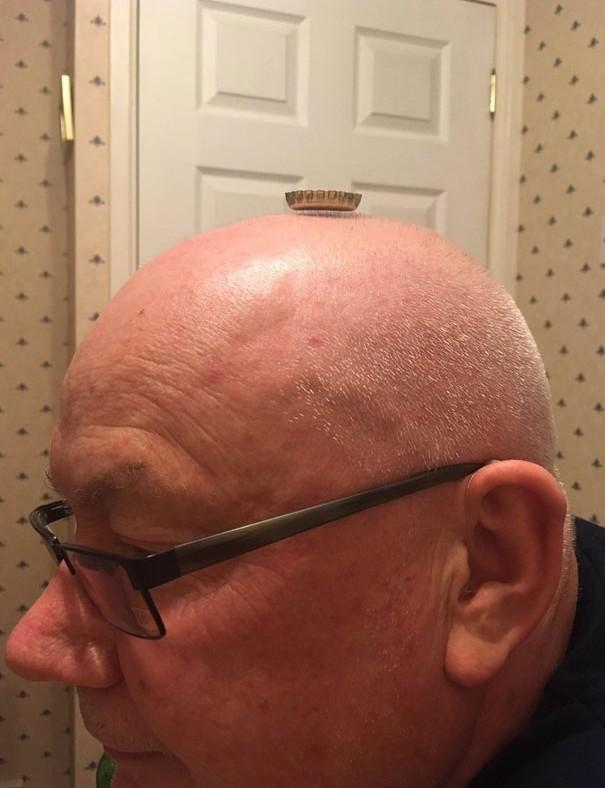 禿頭爸拿神奇小蓋蓋放頭上 證明「男性的尊嚴」依然存在:我只是有打薄啦!