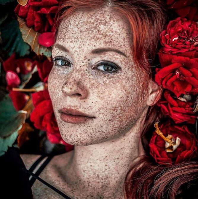 24張證明「基因是最強的藝術家」的獨特美照片  像地圖一樣的身體超夢幻~