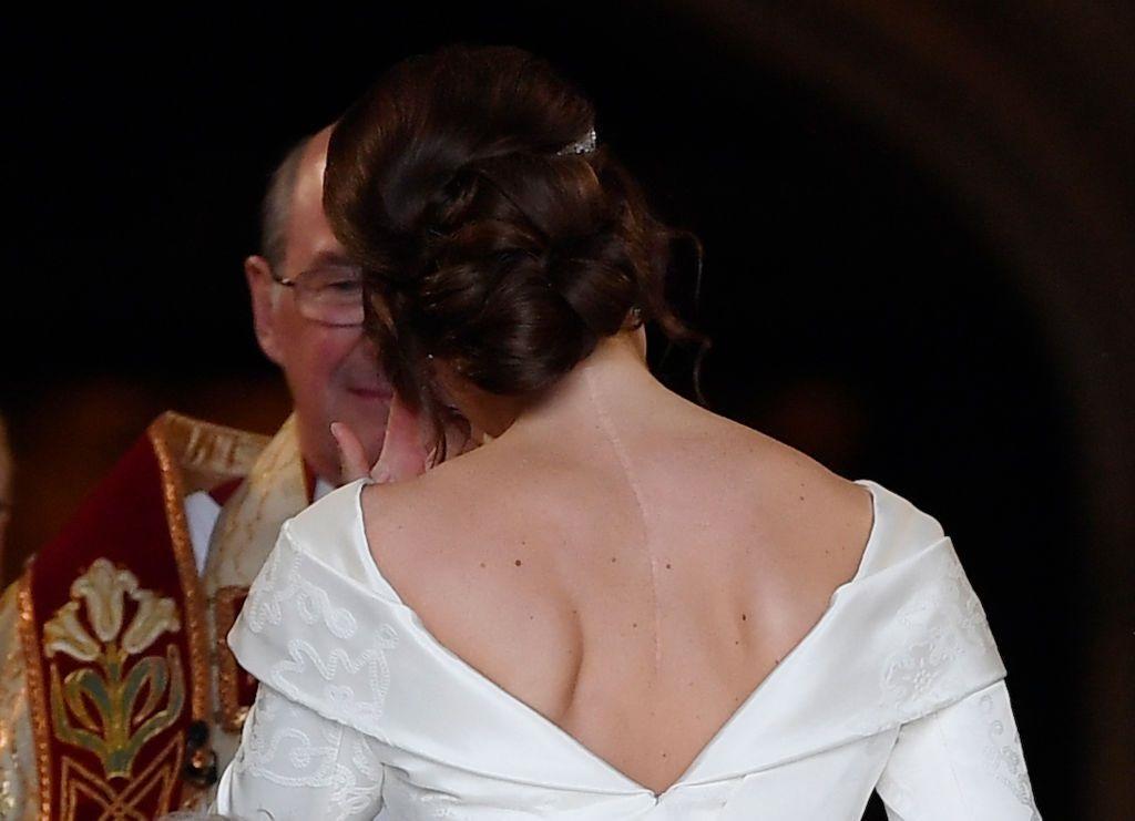英國尤金公主出嫁 超美華麗婚紗「開岔處刀疤」藏童年故事激勵人心♡