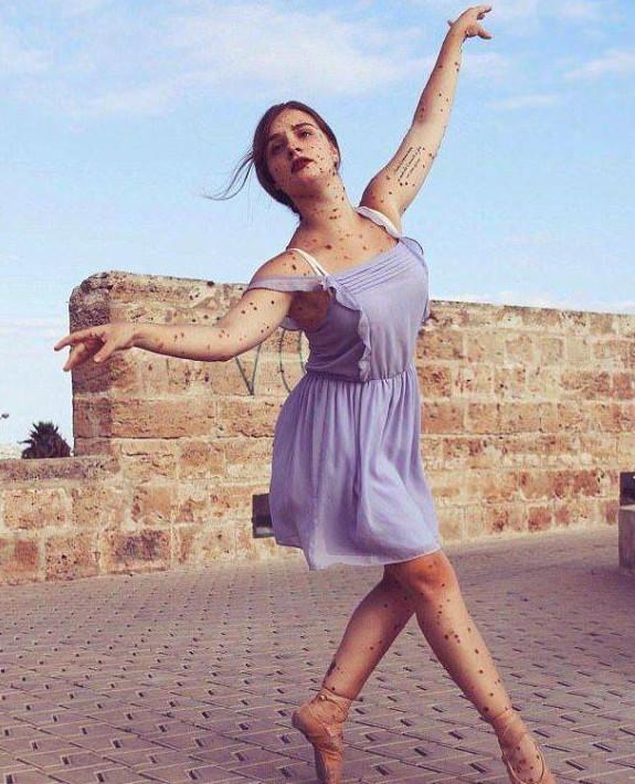爸媽因為生下我而吵翻!13歲以前都在醫院過 「星星印記」正妹學芭蕾後重拾自信:我已經很幸運了